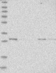NBP1-82029 - RSU1 / RSP1