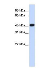 NBP1-57245 - RTCD1