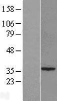 NBL1-15608 - RTDR1 Lysate