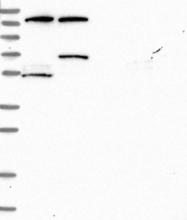 NBP1-88747 - Rhotekin-2 / RTKN2
