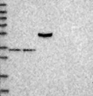 NBP1-88748 - Rhotekin-2 / RTKN2