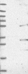 NBP1-81285 - TMEM7 / RTP3