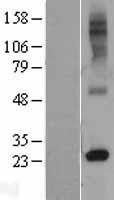 NBL1-15618 - RTP4 Lysate