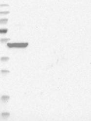 NBP1-81004 - NESCA