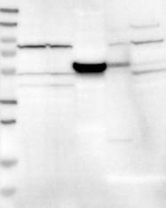 NBP1-84913 - RUVBL1 / TIP49A
