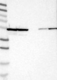 NBP1-84914 - RUVBL1 / TIP49A