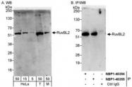 NBP1-40354 - RUVBL2 / TIP49B