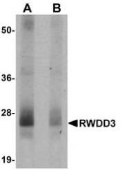 NBP1-76309 - RWDD3
