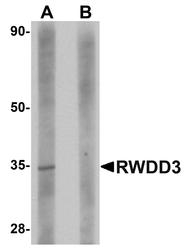 NBP1-76310 - RWDD3