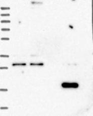NBP1-84743 - RWDD4 / RWDD4A