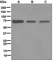 NBP1-95933 - Tyrosine-protein kinase RYK