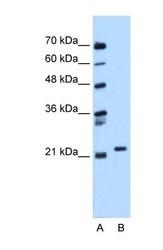 NBP1-58933 - RAB11B