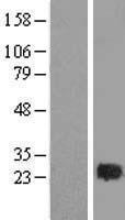 NBL1-15057 - RAB2 Lysate