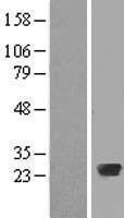 NBL1-15046 - Rab20 Lysate