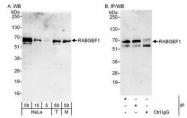 NBP1-49938 - RABGEF1