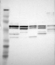 NBP1-87171 - RABGEF1