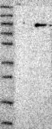 NBP1-86561 - RAD17