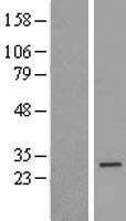 NBL1-15117 - Rad51 Lysate