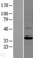 NBL1-15121 - Rad51D Lysate