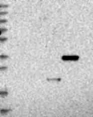 NBP1-80849 - Regucalcin / RGN