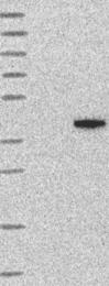 NBP1-90820 - Renin receptor