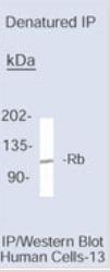 NB120-3077 - Retinoblastoma-associated protein / RB1