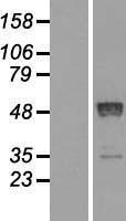 NBL1-15158 - Retinoic Acid Receptor beta Lysate
