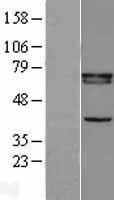 NBL1-15642 - Retinoid X Receptor beta Lysate