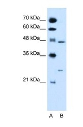 NBP1-52815 - RXR-gamma / RXRG