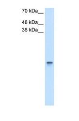 NBP1-57677 - Retinol-binding protein 1