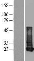 NBL1-15226 - Retinol Binding Protein RBP Lysate