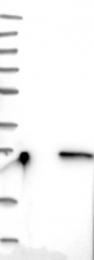 NBP1-88833 - RhoD
