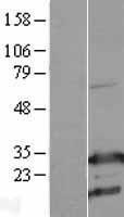 NBL1-07673 - RhoGDI Lysate