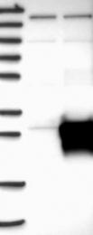 NBP1-89012 - RhoJ