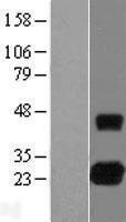 NBL1-15358 - RHOJ Lysate