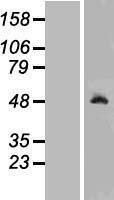 NBL1-15466 - Ribonuclease Inhibitor Lysate
