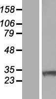 NBL1-15423 - Ring finger protein 138 Lysate