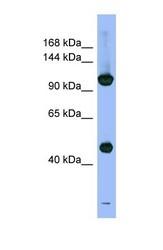 NBP1-58214 - PSMD1