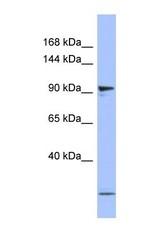 NBP1-58221 - PSMD1