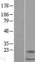 NBL1-15653 - S100A16 Lysate