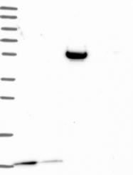 NBP1-87101 - S100A3