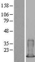 NBL1-15658 - S100A6 Lysate