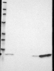 NBP1-89360 - S100A9 / Calgranulin-B / MRP14