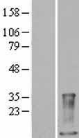 NBL1-15660 - S100A9 Lysate