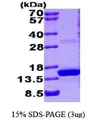 NBP1-44500 - S100A9 / Calgranulin-B / MRP14