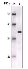 NBP1-47545 - S100B