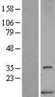 NBL1-15663 - S100P Lysate