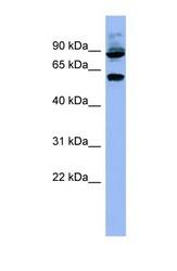 NBP1-55391 - RPS6KB1 / STK14A