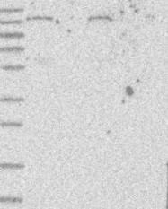 NBP1-87097 - STAG1 / Stromal antigen 1