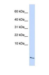 NBP1-58991 - Serum amyloid A-4 protein (SAA4)